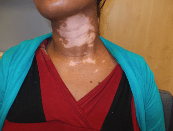 Vitiligo_Woman_Before_Makeup